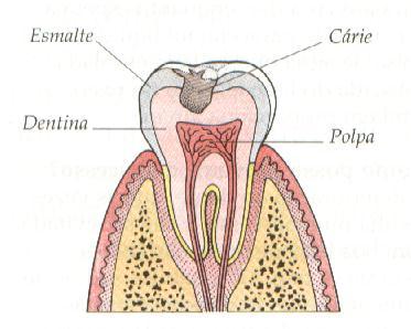 anatomia dente e carie