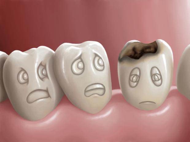 A cárie dentária e o seu tratamento