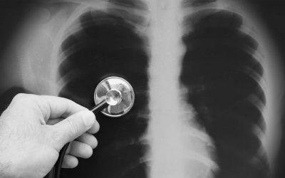 O Meu Médico Disse Que Eu Tinha Uma Pneumonia…