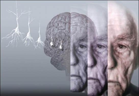 Doença de Alzheimer - Neurologista ao Domicílio