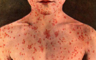 Sarampo, Vacinas e os Limites da Liberdade Individual